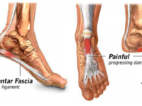 Clinical Pathology Plantar Fasciitis